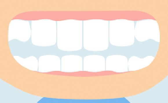 出っ歯の原因