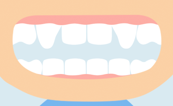八重歯の原因