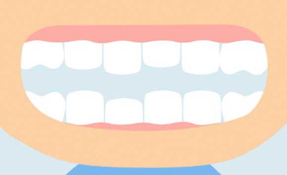 ガタガタの歯ならびの原因