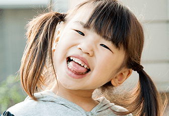 舌の横が歯の形に圧痕となっている